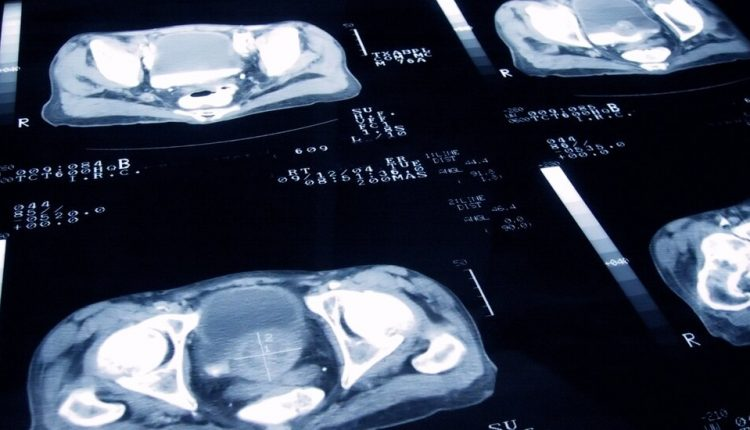 New Therapy for Aggressive Prostate Cancer Improves Survival